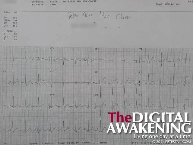 Electrocardiograph (ECG) for November 30, 2011